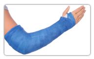 post-fracture-stiffness